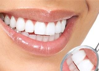 накладки на зубы виниры отзывы