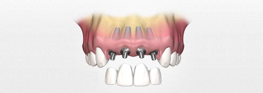 Вставить один передний зуб стоимость