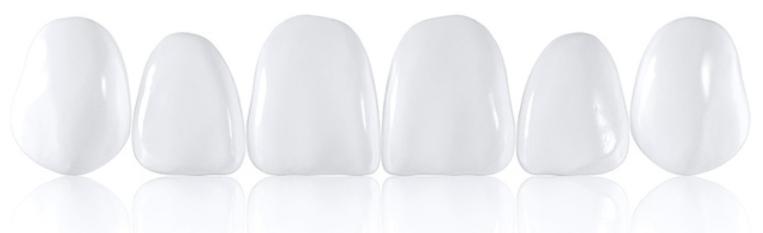 съемные накладные виниры на зубы