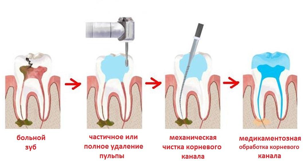 процесс лечения пульпита