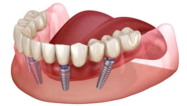 Несъемный зубной протез на 4 имплантах в Екатеринбурге
